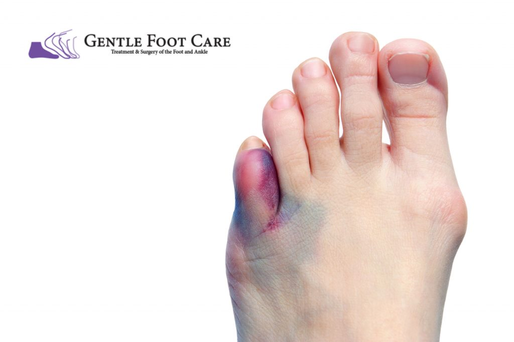 Gentle Foot Care - Broken Toe