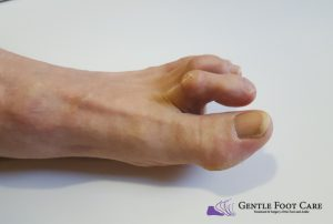 Gentle Foot Care - Hammertoe